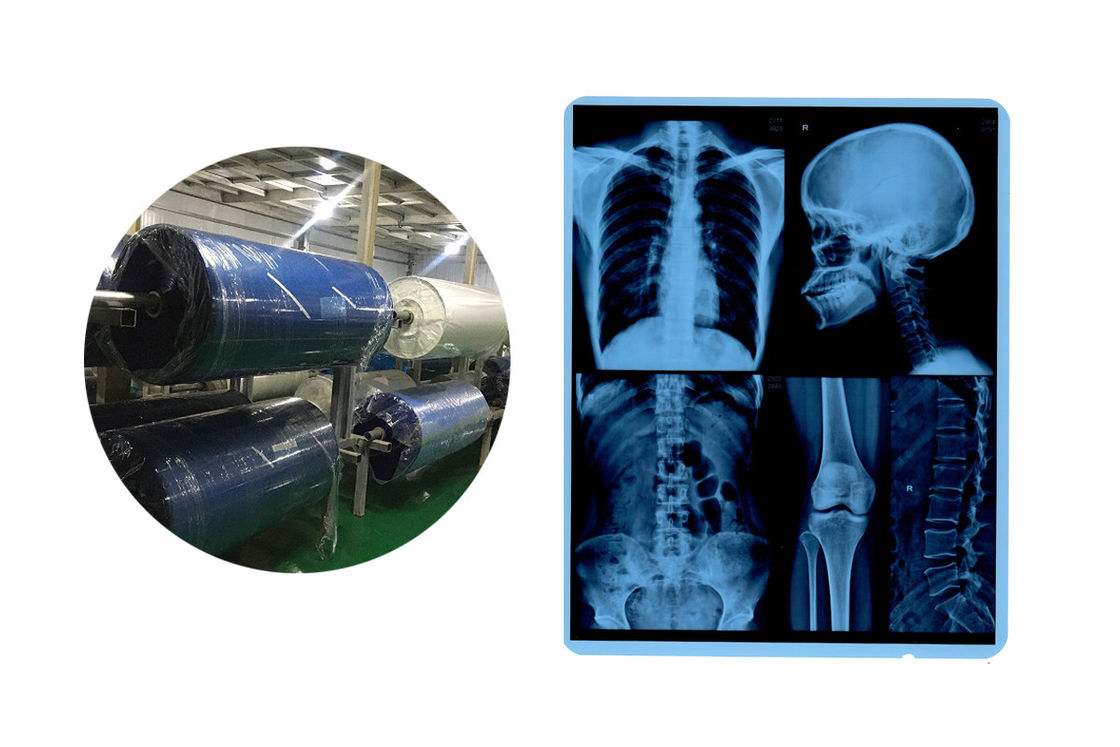 8x10 210 Micron Blue Base X Ray Medical Imaging Film