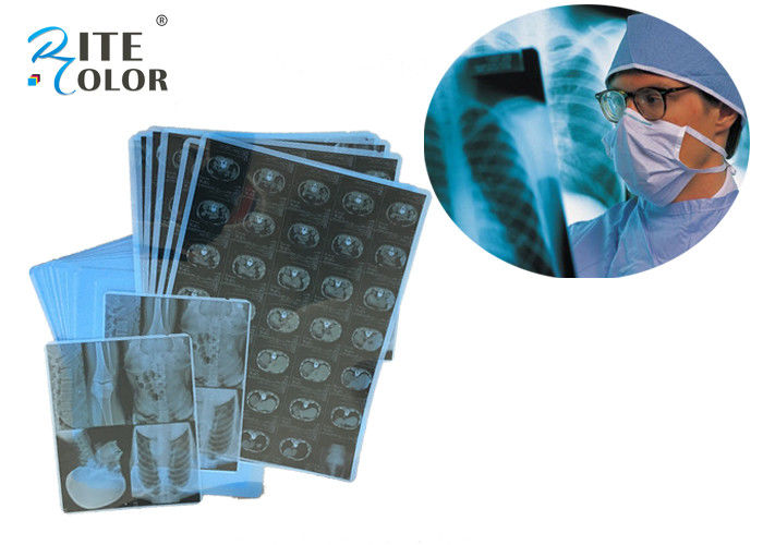 "14""X17"" Instant Dry X Ray Inkjet Medical Film  For CT MRI"